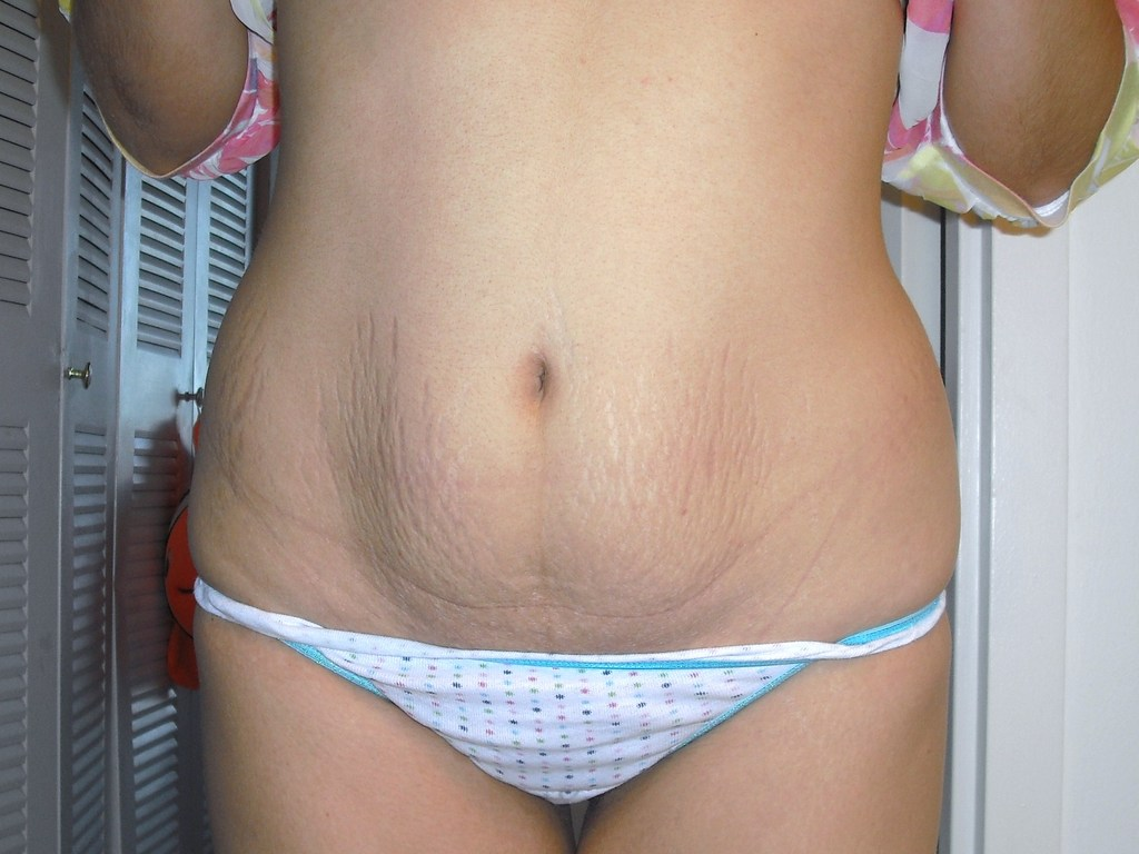 these stretch marks will not go away, but her skin most likely will ...